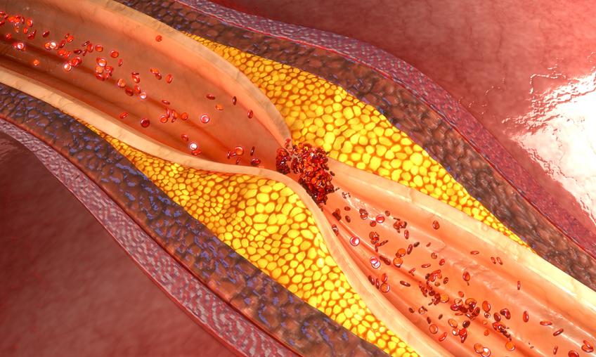 Холестерин - як підтримувати свій здоровий рівень?