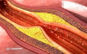 Cholesterol - jak utrzymać go na dobrym poziomie?
